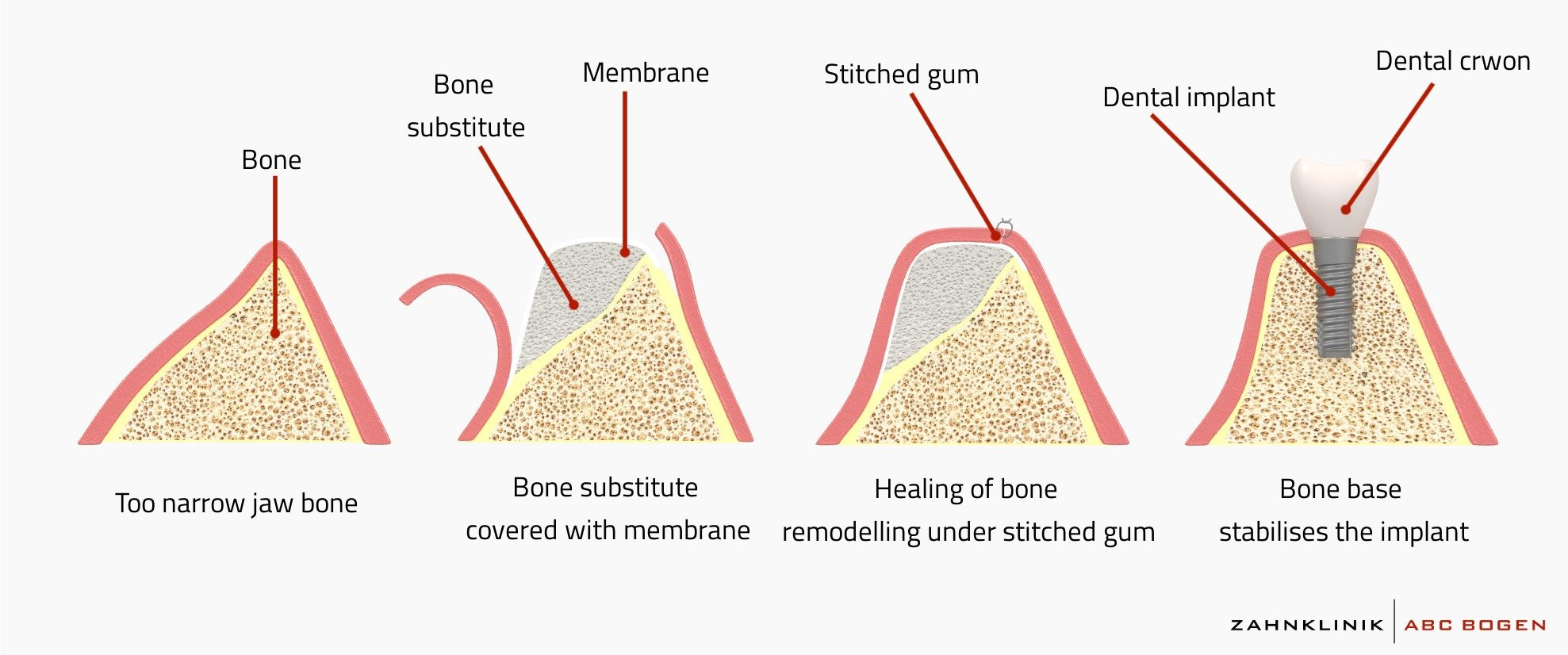 bone-grafting-osteoplasty-with-apposition
