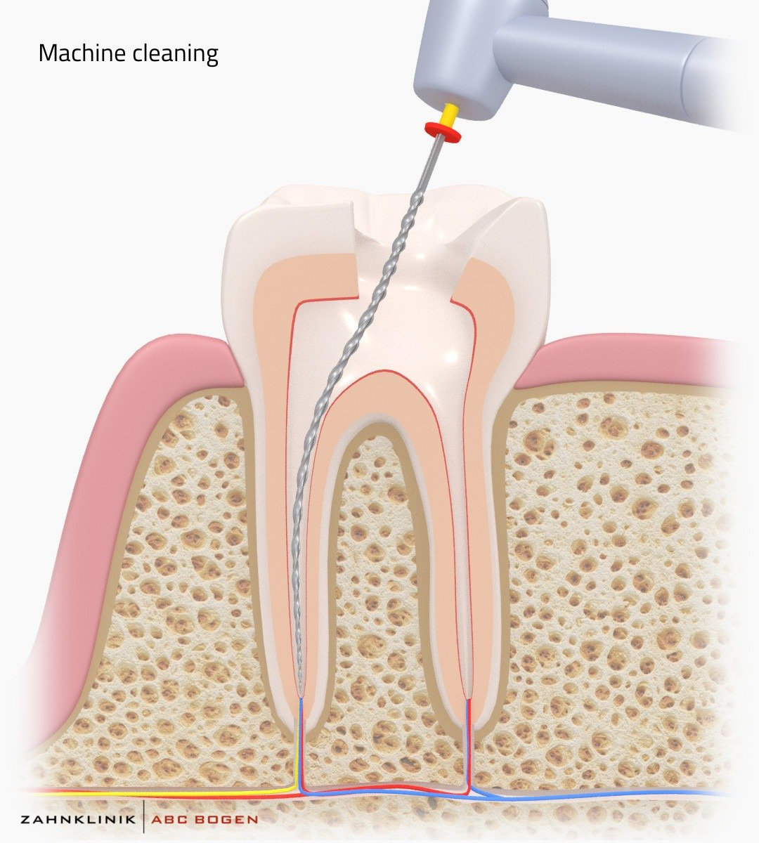 removal-of-caries