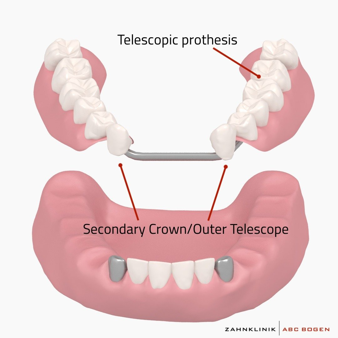 telescopic-prosthesis