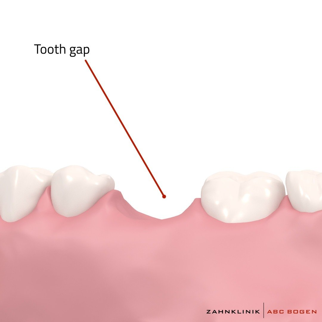 tooth-gap