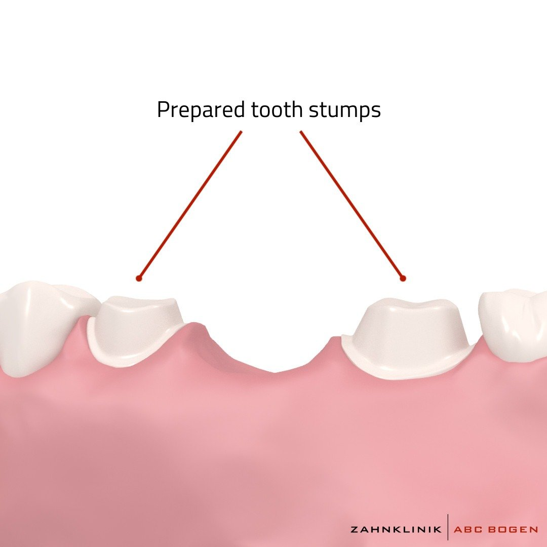 tooth-stumps